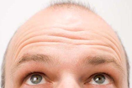 baldness / photo from http://presstv.com