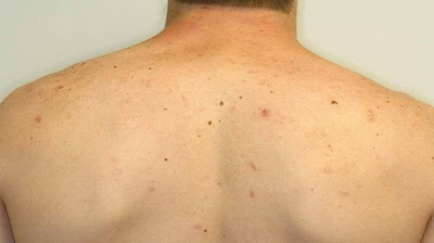 Body Acne - photo from : articlesbase.com